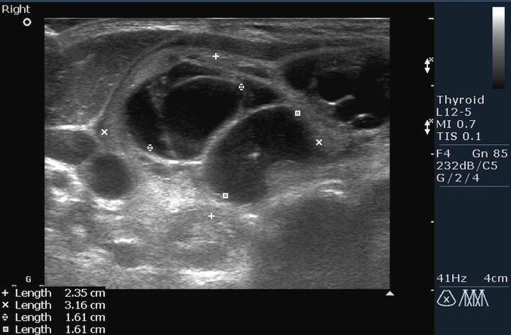 Процесс исследования щитовидной железы