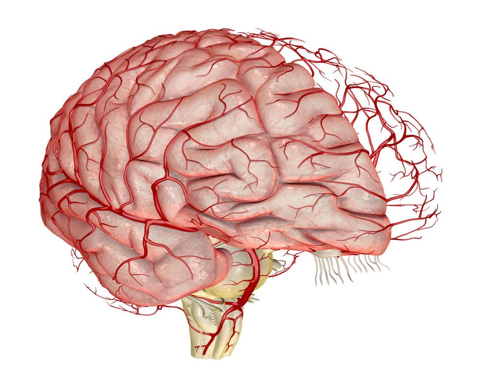 Сосуды головного мозка