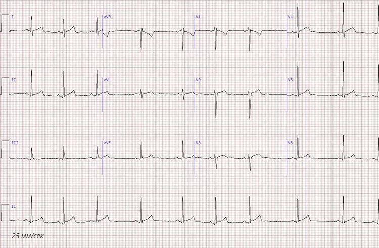 Электрокардиограмма сердца для расшифровки