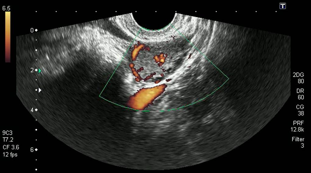 Снимок желтого тела с УЗИ
