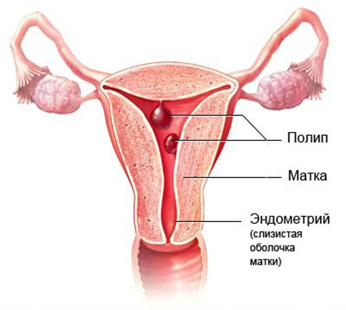 Матка с эндометрием