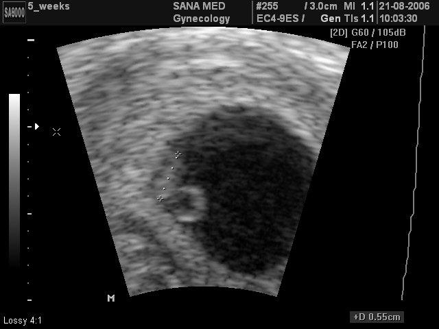 УЗИ при беременности сроком в 2 недели
