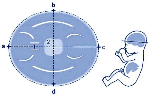 Измерение БПР