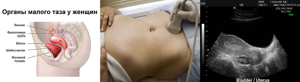 Трансабдоминальное УЗИ органов малого таза